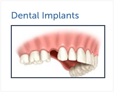 Dental Implant Houston - Houston Periodontics and Dental Implant Surgery