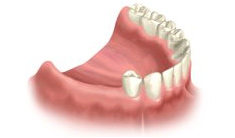 Multiple Teeth Implant Houston - Quality Dental Implants Houston Dentist